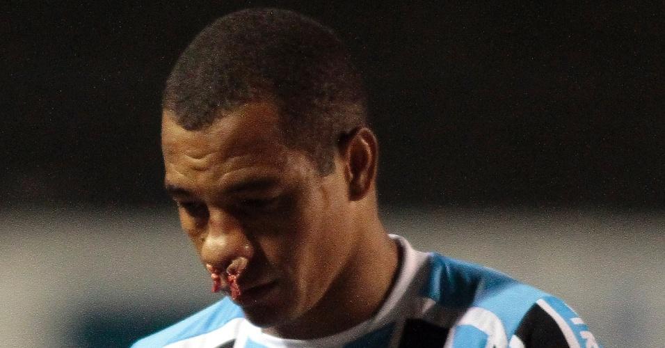 Gilberto Silva machucou o nariz durante o jogo contra o Avenida e teve de sair