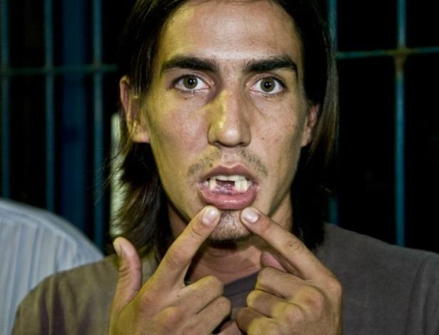 O turista argentino Ignácio Augustin Luján, 25 anos, mostra os três dentes que perdeu durante agressão de PMs em Cuiabá, Mato Grosso