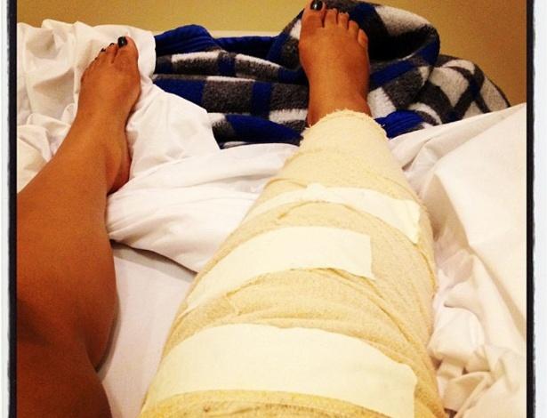 """Preta Gil mostra foto da perna enfaixada após passar por cirurgia no joelho. """"Foi tudo bem, Deus guiou a cirurgia"""", escreveu a cantora que operou uma lesão no menisco (16/4/12)"""