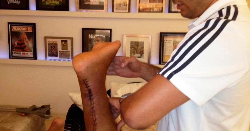 Adriano realiza primeira sessão de fisioterapia após cirurgia no tendão calcâneo