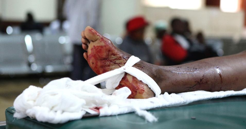 Perna ferida é vista no Hospital Nacional Kenyatta depois de explosão em Igreja de Nairóbi, no Quênia. Um ataque com granadas foi registrado na capital queniana