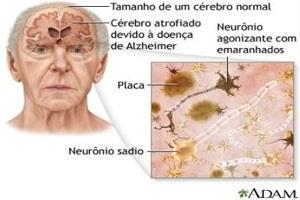 As alterações mais comuns encontradas no tecido cerebral de pessoas diagnosticadas com alzheimer são emaranhados de proteína dentro das células nervosas que causam uma obstrução
