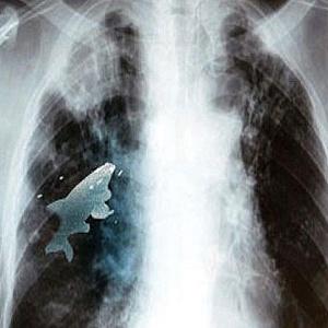Médicos retiram peixe vivo de pulmão de garoto