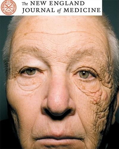 4.jun.2012 - Um homem de 69 anos apresentou um enrugamento da pele muito maior do lado esquerdo do rosto. Segundo pesquisadores da Universidade de Northwestern, em Chicago, que estudaram o caso, o motivo foram os raios ultravioletas (UVA) que atingiram o rosto do senhor que trabalho durante 28 anos como caminheiro. Os pesquisadores estudaram os efeitos da exposição sofrida pelo caminhoneiro durante esse período e o resultado foi publicado no New England Journal of Medicine