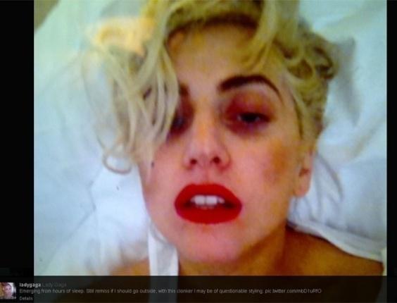 """Lady Gaga publica no Twitter primeira após acidente em que foi atingida por uma barra de ferro durante show na Nova Zelândia, no último domingo (10), A barra de ferro que estava na mão de um dos dançarinos atingiu acidentalmente a cabeça da cantora. Pela foto, no entanto, não é possível saber se o acidente deixou hematomas na artista. """"Emergindo de horas de sono. Ainda na dúvida se eu deveria ir lá fora"""", escreveu Gaga ao lado da foto (12/6/12)"""