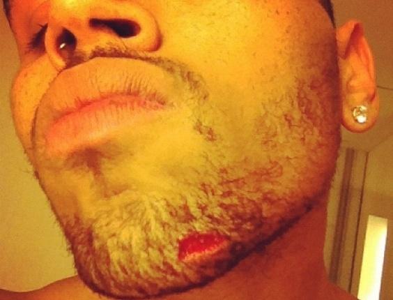 O cantor Chris Brown publicou em seu perfil no Instagram  uma foto em que aparece com um corte no queixo (13/6/12)