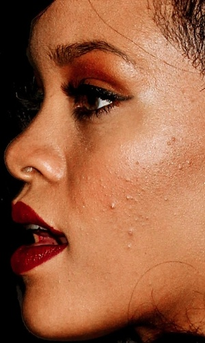 Não usar o Photoshop - Uma das ''maldades'' possíveis com as celebridades é justamente não usar o programa de edição de imagens para esconder imperfeições. O site ''Celebrity Close Up'' tem alguns flagras que mostram de perto rostos de famosos. Na foto,a cantora Rihanna