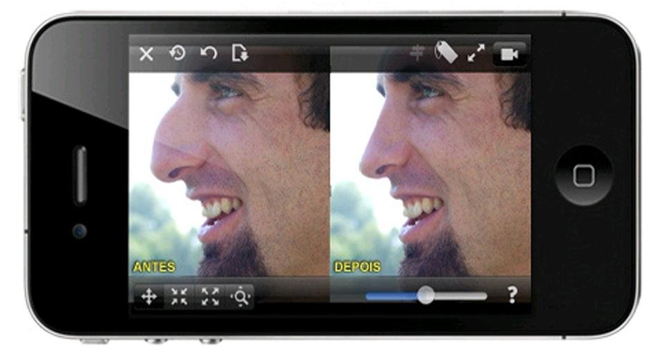 Aplicativo para iPhone e Android permite ver como ficaria seu corpo após uma cirurgia plástica