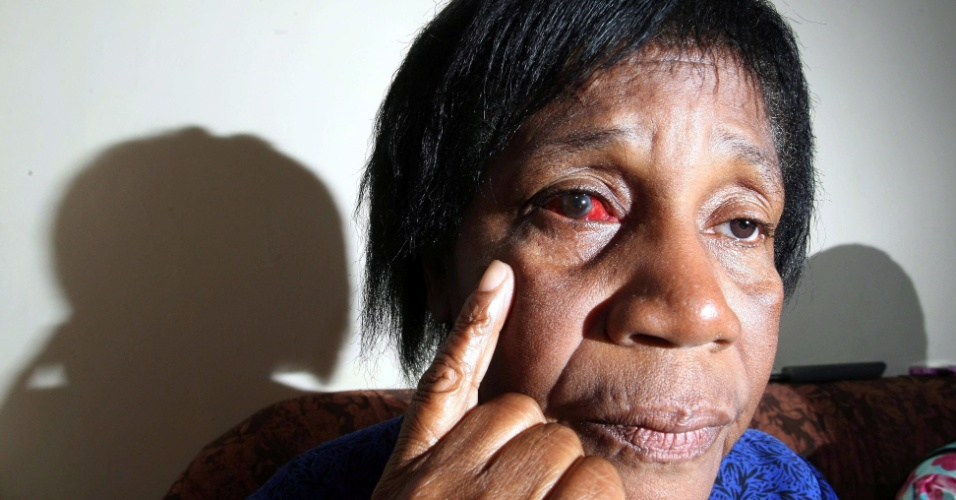 10.jul.2012- A aposentada Adilma Paulo mostra marcas de agressão em seu olho no RJ