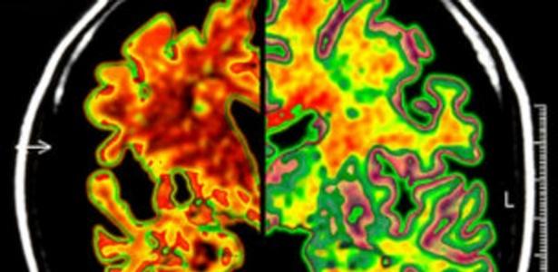 Pacientes com tendência a Alzheimer possuíam níveis anormais de uma proteína no cérebro.