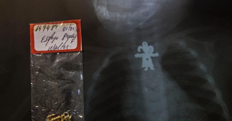 27.jul.2012 - Pingente de bonequinha engolido por um bebê de 8 meses que foi atendido no Hospital Municipal Souza Aguiar, no centro do Rio de Janeiro