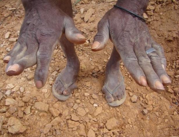 15.ago.2012 - Garimpeiro mostra as mãos marcadas pelos anos de trabalho em Serra Pelada
