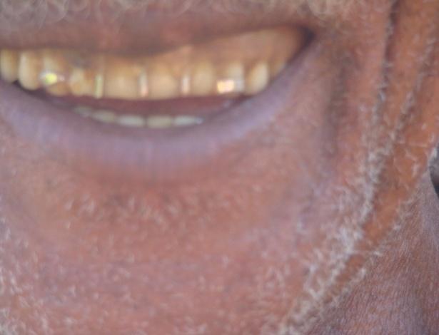 15.ago.2012 - O ouro que restou em Serra Pelada está em dentes, pulsos e pescoços