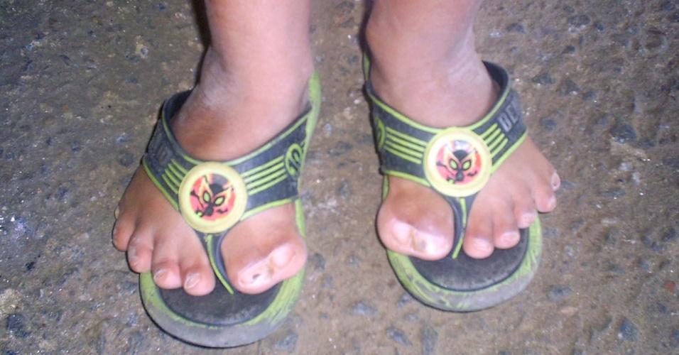 Menino em Goiás tem 26 dedos, seis em cada pé e sete em cada mão