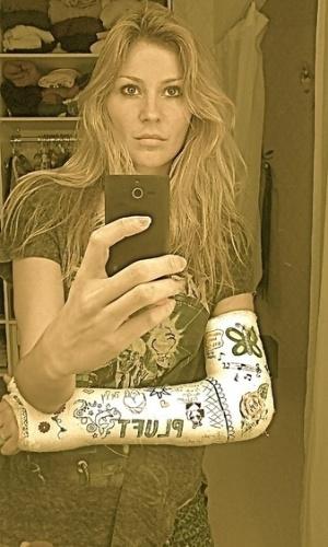 Ellen Jabour posta foto com gesso no Twitter. A modelo e apresentadora sofreu um acidente ao cair de patins no final de agosto, fraturando o braço e perdendo dois dentes (12/9/12)