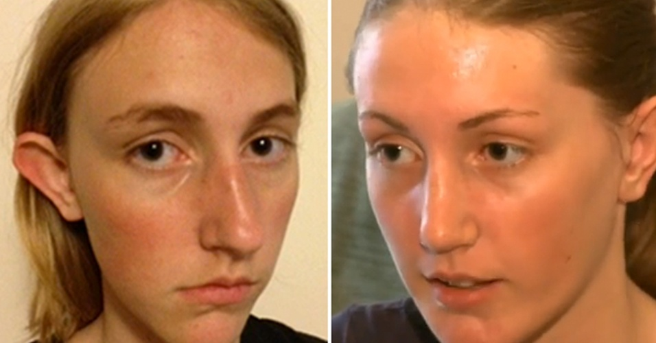 ONG paga plástica polêmica de menina vítima de bullying