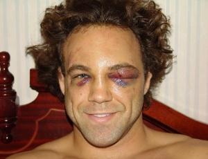 Kyle Kingsbury mostra o resultado de seu combate no UFC de Nottingham, na Inglaterra; um olho fechado e fraturas na face