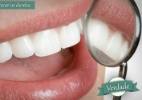 Posso deduzir despesas com dentista referentes à manutenção de aparelho no IR? - Thinkstock