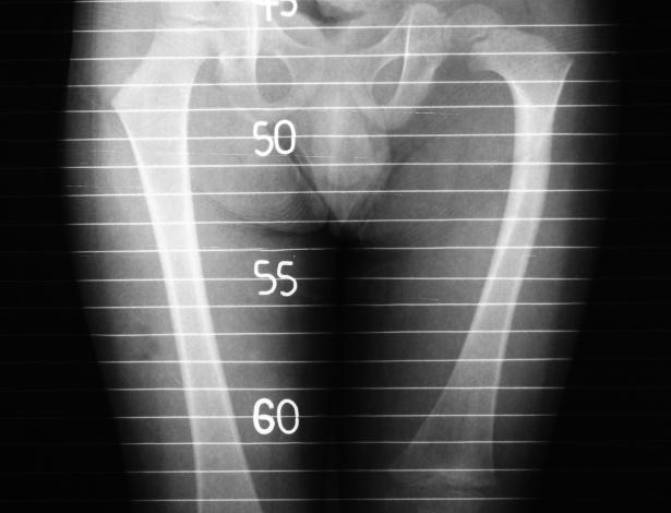 Entre as fraturas mais frequentes, a do fêmur é a mais grave, pois além de causar dor intensa, demanda um procedimento cirúrgico para colocação de prótese