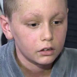 Reação alérgica a remédio à base de ibuprofeno levou o garoto de 11 anos a uma UTI de hospital