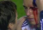 após cotovelada: C. Ronaldo perdeu parte da visão, segundo Mourinho