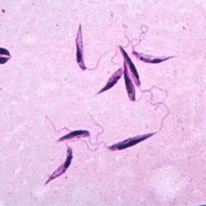 Parasita causador da leishmaniose visceral; Brasil, Bangladesh, Índia e Sudão concentram 90% dos casos da doença no mundo, segundo pesquisadores