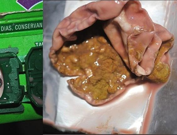 A carioca Ursula de Almeida encontrou uma gosma no fundo da garrafa de suco de uva da Ades. Segundo a Unilever, a gosma era um fungo que provavelmente teria sido formado por uma fissura na caixa