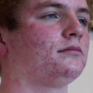 Will, jovem de 15 anos, disse em documentário da BBC que a acne afetou sua autoestima