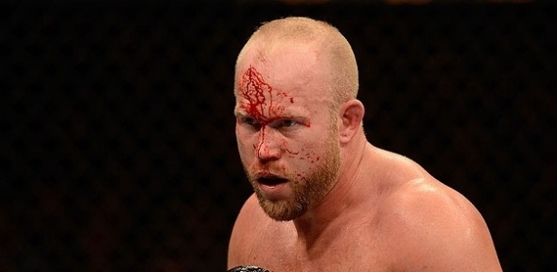 Tim Boetsch sangra no rosto durante o combate contra Costa Philippou no UFC 155