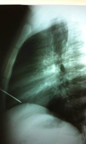Imagens do dia 10 de janeiro de 2013 bol fotos for Esterno e um osso irregular