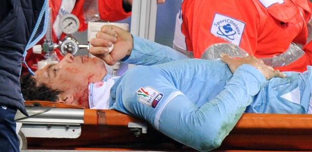 Hernanes sai de maca sangrando em jogo da Lazio contra a Juventus nesta terça