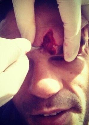 01.fev.2013 - Belfort posta foto de machucado 10 dias antes do UFC São Paulo
