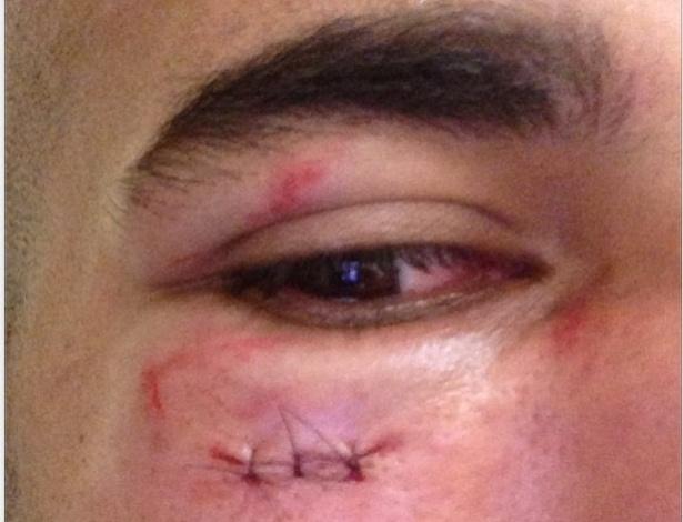 09.fev.2013 - Emerson mostra como ficou seu olho após choque com juiz