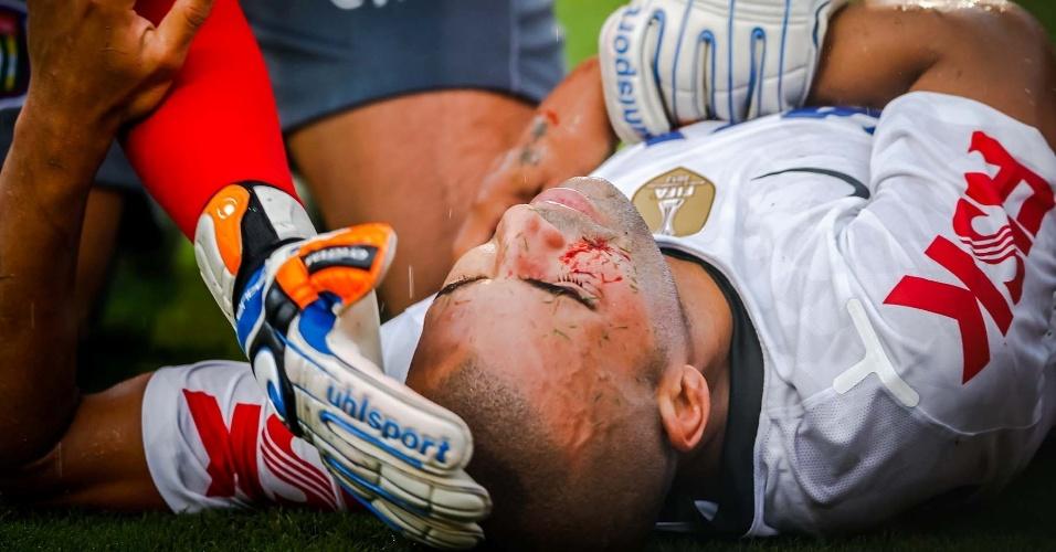 09.fev.2013- Emerson Sheik cai no chão sangrando após choque com o árbitro adicional na partida contra o São Caetano no Pacaembu