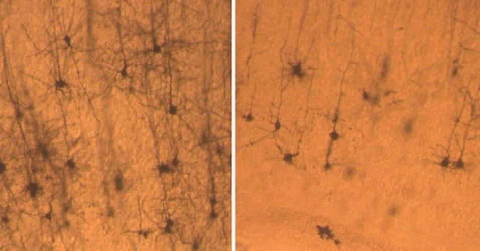 Neurônios de um rato normal (à esquerda) são mais longos e completos do que os neurônios de um rato sem a proteína SNX27 (à direita)