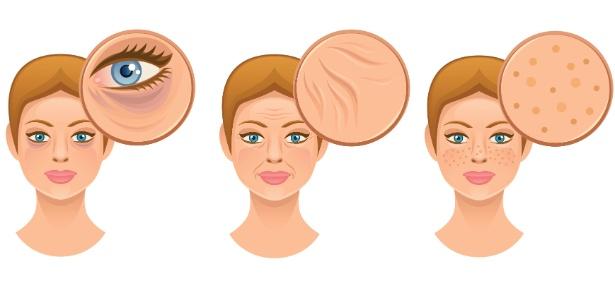 Bolsas abaixo dos olhos, rugas e manchas são alguns dos principais problemas relatados no consultórios dermatológicos