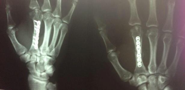 Saiba mais sobre o Curso online de Radiologia
