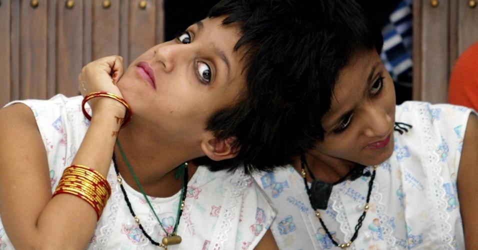 10.abr.2013 - A Suprema Corte da Índia decidiu descartar a possibilidade de cirurgia para separar as gêmeas siamesas Saba e Farah, de 17 anos. Além disso, obrigou o governo a conceder uma quantia de 5.000 rúpias por mês à família (R$ 181), para garantir assistência médica às adolescentes. As irmãs ficaram felizes com a decisão