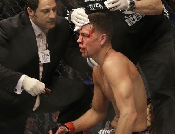 20.abr.2013 - Nate Diaz sangra e recebe atendimento após derrota por nocaute para Josh Thomson