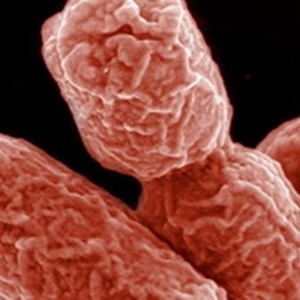 "A ""E. Coli"", bactéria do intestino, transforma em gordura o açúcar absorvido do organismo"