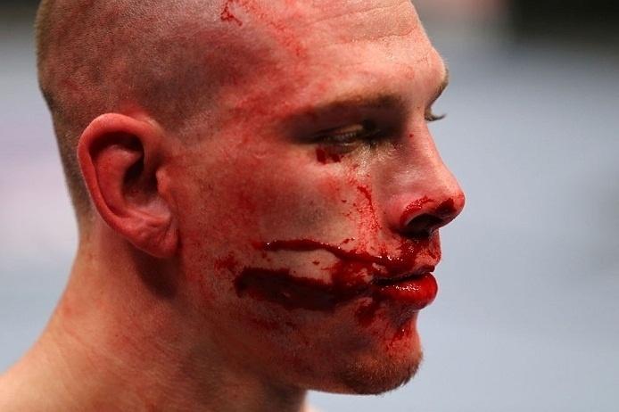 28.abr.2013 - Kurt Holobaugh sangra durante luta dos peso-penas contra Steven Siler no UFC 159