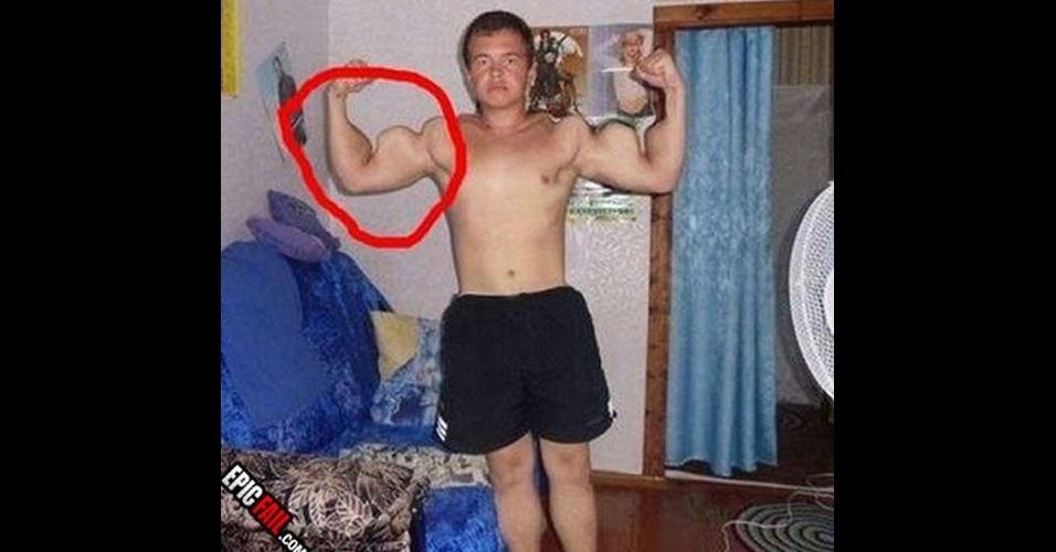 Os músculos dos braços do menino foram alterados bizarramente