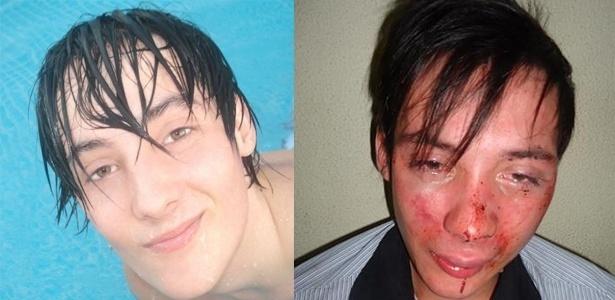 André Barbosa antes e depois da agressão sofrida em boate de Balneário Camboriú (SC)