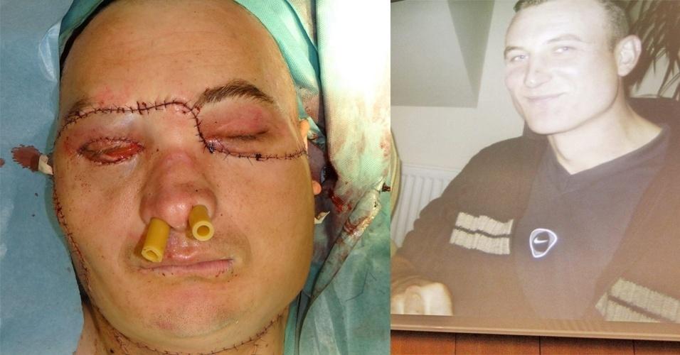 22mai2013 Um Homem De 33 Anos Recebeu O Primeiro Transplante De