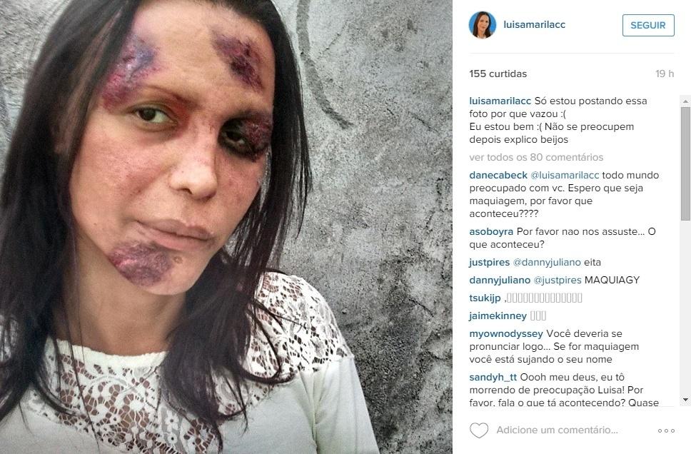 22.fev.2015 - A transexual Luisa Marilac divulgou no Instagram uma foto em que aparece com supostos hematomas na segunda-feira (22). Os fãs ficaram preocupados e, na madrugada desta terça (23), Marilac explicou que se tratava de uma campanha contra a transfobia.