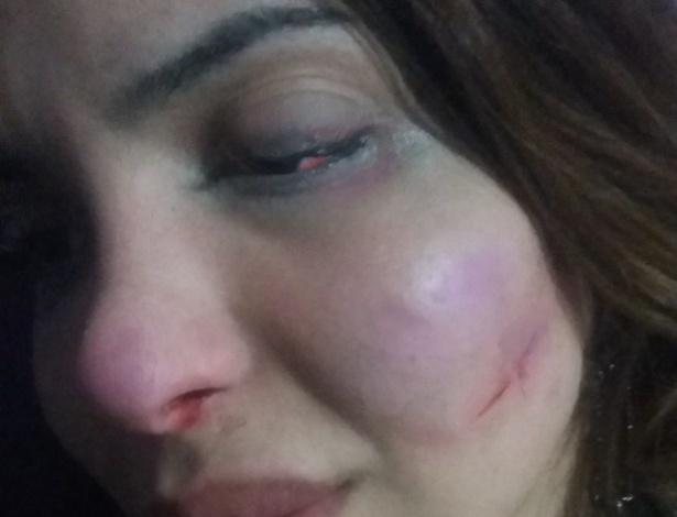 9.ago.2015 - A transexual Viviany Beleboni postou um vídeo na noite deste sábado (8), instantes depois de, segundo ela, ter sido esfaqueada em São Paulo.