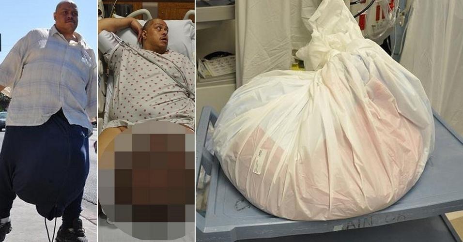 """10.jun.2013 - Um homem de 48 anos foi submetido a uma cirurgia que durou 13 horas para corrigir os testículos, que pesavam pouco mais de 45 kg. Segundo informações do jornal britânico """"The Sun"""", Wesley Warren, que mora em Las Vegas (EUA), era portador do distúrbio linfedema escrotal, que acumulou líquido no escroto e provocou alteração de tamanho em menos de dois anos."""