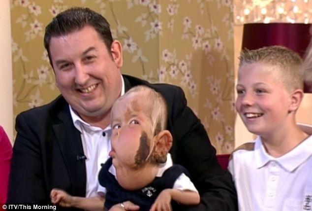 5.jul.2013 ? Aidan Smith, uma criança britânica de dois anos de idade, está sofrendo com uma doença não diagnosticada que criou uma grave deformidade em seu rosto e corpo. Por conta da deformação, ele não pode falar ou andar e sua condição está testando os médicos de todo o país, que n&#22