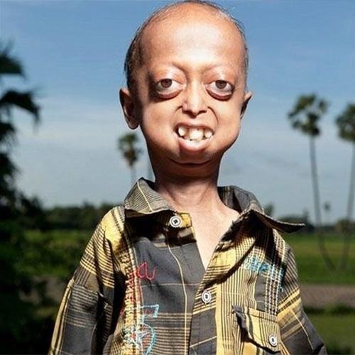 26.ago.2013 - O garoto Ali Hussain, de 14 anos, nasceu na Índia e sofre de uma condição chamada progeria, que significa velhice em grego, e também é conhecida como Síndrome de Huntchinson-Gilford ou Síndrome do ET. O efeito é semelhante ao que acontece com o personagem Jack (interpretado por Robin Williams), do filme homônimo, em que o menino, com uma doença rara, envelhece em uma velocidade bem acima do esperado. É exatamente isso que acontece com Ali. Seu corpo envelhece oito vezes mais rápido que o normal, ou seja, é como se ele tivesse 112 anos.