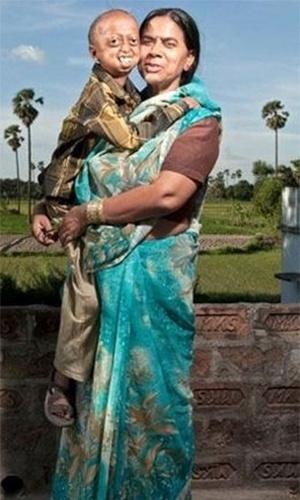 """26.ago.2013 - Os pais de Ali, Nabi Khan, de 50 anos, e Razia, de 46 anos, são primos de primeiro grau e tiveram o casamento arranjado há 32 anos. Eles tiveram oito filhos, destes, Rehana, Iqramul, Gudiya e Rubina morreram por causa da progeria, doença rara que faz o portador envelhecer em uma velocidade bem acima do normal. Um quinto filho, um menino, morreu 24 horas após nascer e também tinha o problema. No entanto, duas filhas do casal nasceram saudáveis Sanjeeda, de 20 anos, e Chanda, de 10 anos. De acordo com o jornal """"Daily Mail"""", os pais não faziam ideia de qual era o problema dos filhos. O diagnóstico só veio em 1995, mas não os ajudou muito, pois a doença não tem cura. """"Nós nunca tínhamos ouvido falar em progeria. Os médicos nunca mencionaram isso. Eles davam tateavam no escuro, assim como nós. Se algum médico tivesse nos dito que nossos filhos estavam sofrendo com algum tipo de problema genético, nós teríamos parado de ter filhos. Mas nada foi dito"""", lamenta o pai, Nabi, que trabalha como porteiro em uma fábrica e ganha em torno de R$ 75 por mês"""